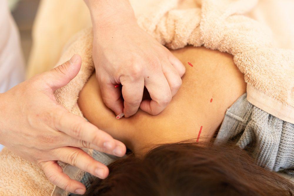 鍼灸施術|富谷市いわもと鍼灸整骨院