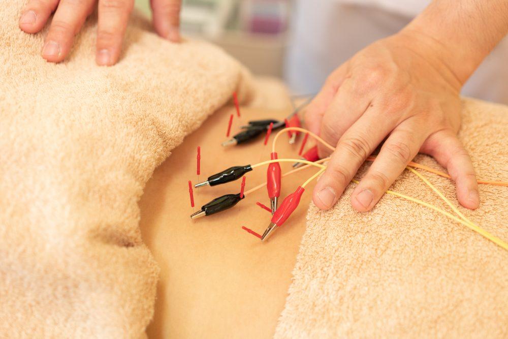 電気鍼|富谷市の鍼灸院